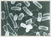 腸管出血性大腸菌O157の顕微鏡写真